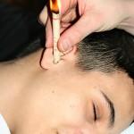 Ohrkerzen Behandlung